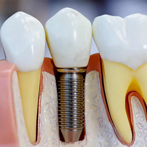 Teeth model showing a single implant