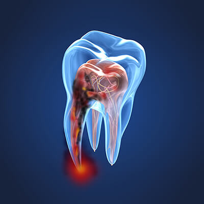 3D rendering of a root canal, which is part of our family dentistry services