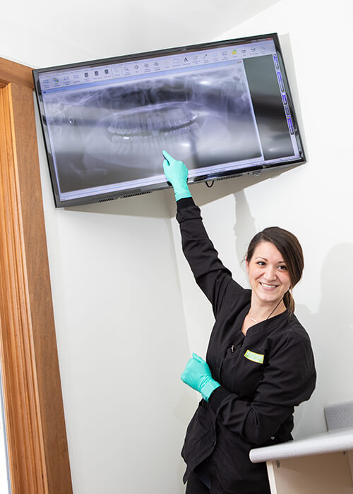 Our dental staff showing a X-ray before the patient gets dental implants